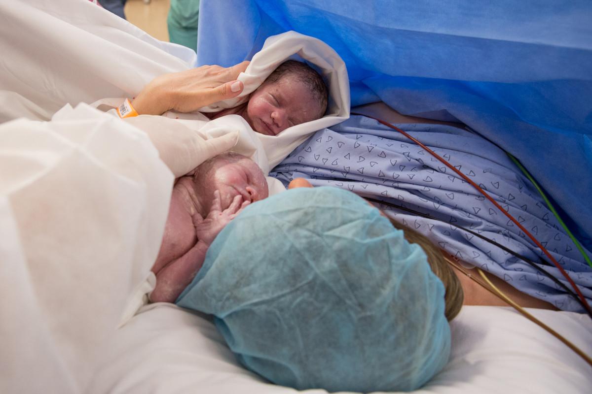 fotos de parto