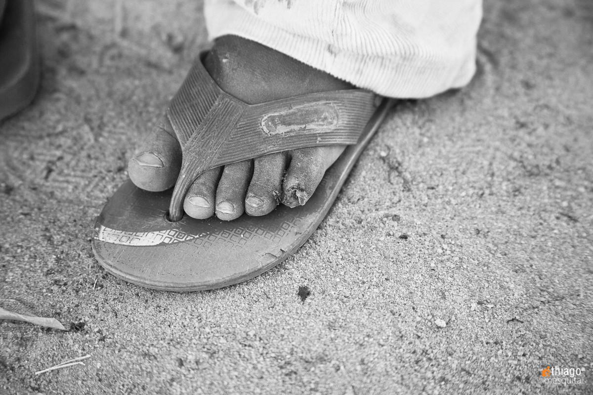 atendimento médico em moçambique dondo pela ong missão áfrica - pés descalsos com bicho