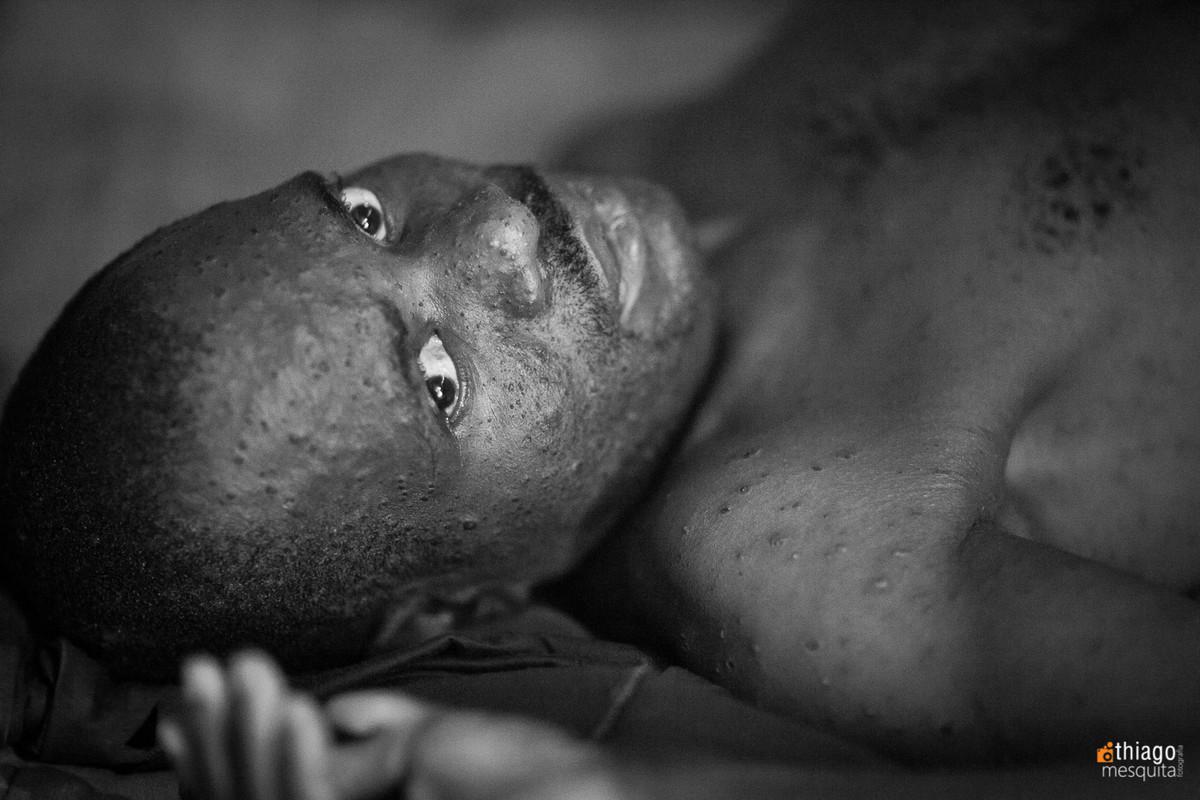 feridas no rosto doenças africanas