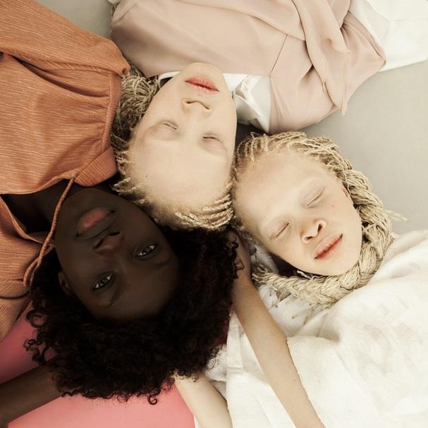 Imagem capa - Gêmeas albinas e irmã negra viram modelos e impressionam por beleza por Gislaine Reis