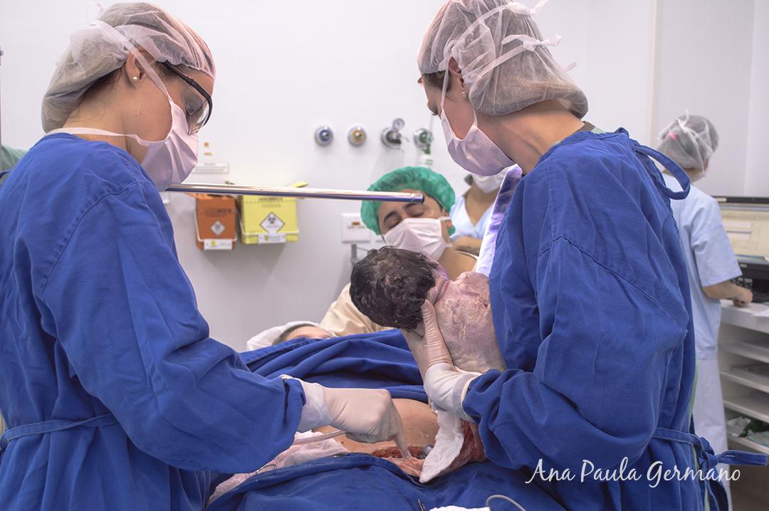 fotografia de parto - parto normal - parto cesária -hospital e maternidade Santa Joana 35