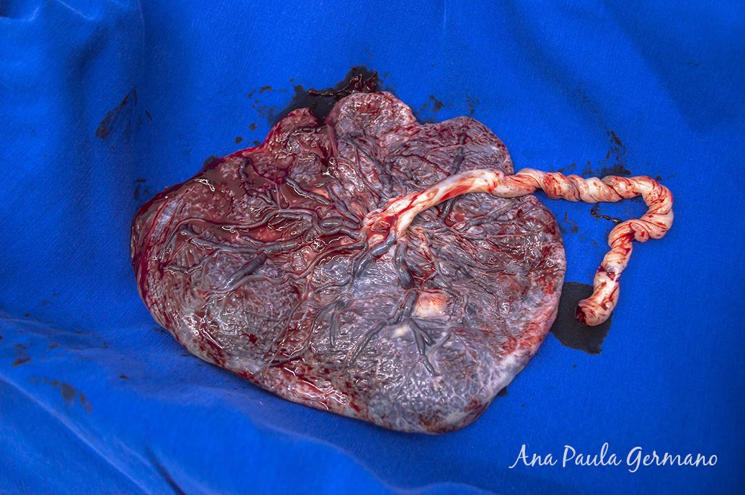 fotografia de parto - parto normal - parto cesária -hospital e maternidade Santa Joana 41