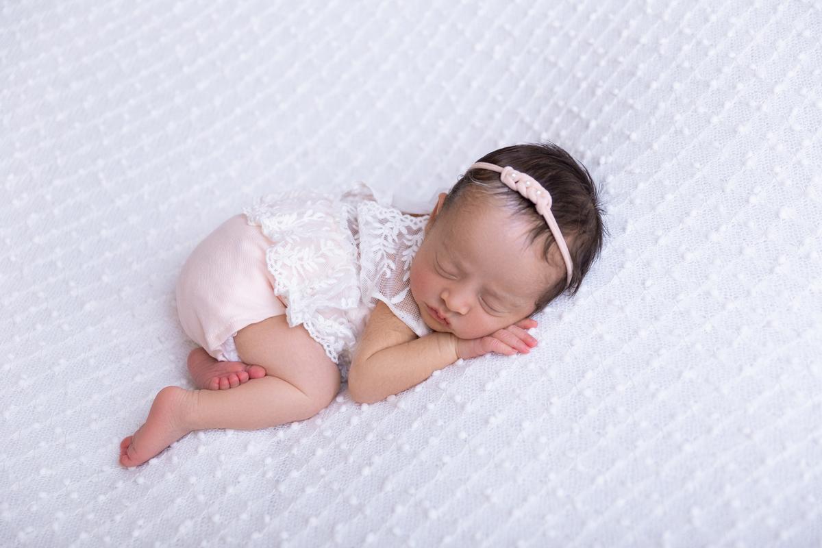 Piebaldismo Brasilia DF Newborn