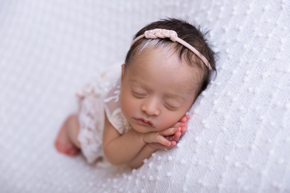 Pose lateral bebe de 13 dias com Piebaldismo, Brasilia, Gabi Aine