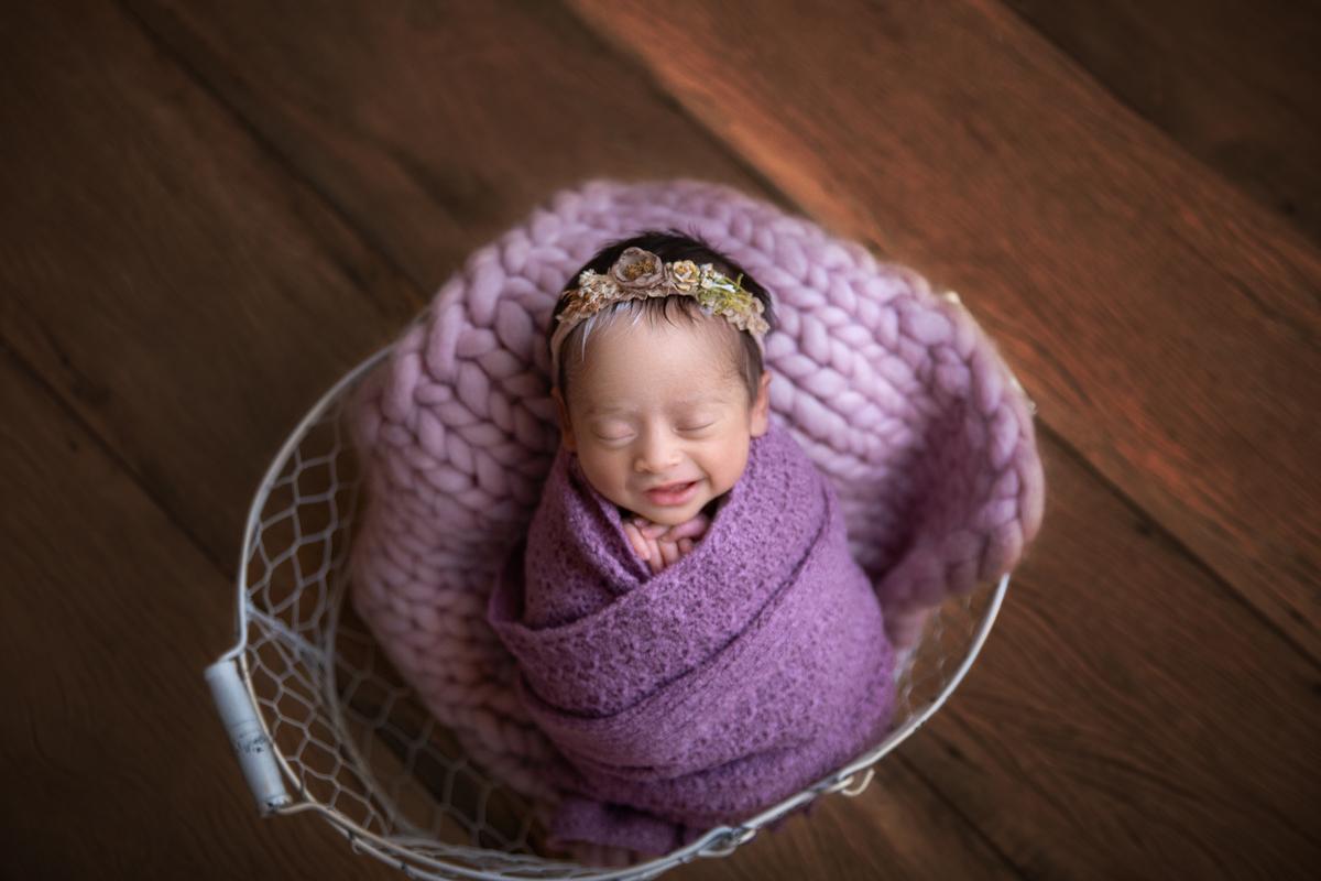 Sorriso composição roxa, bebê newborn Piebaldismo
