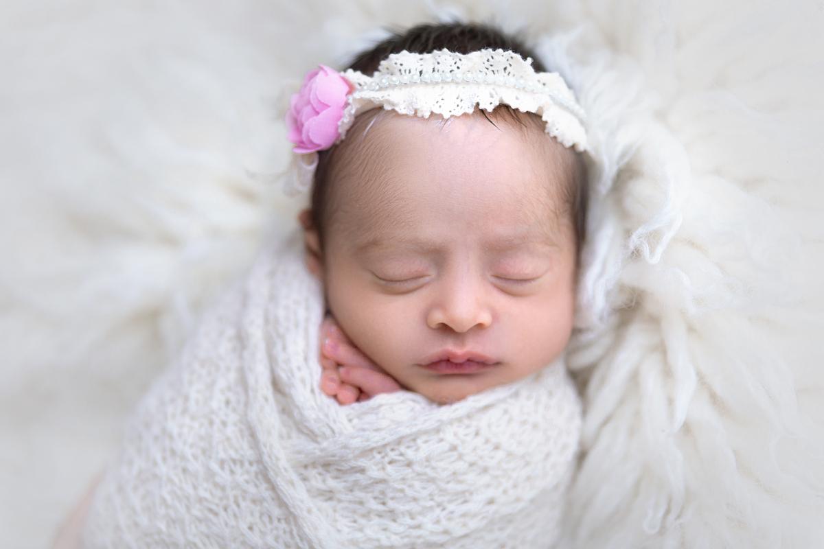 Delixdeza de bebê com Piebaldismo, Brasilia, Gabi Aine