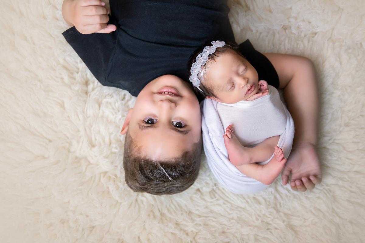 newborn com irmão, Piebaldismo em dose dupla